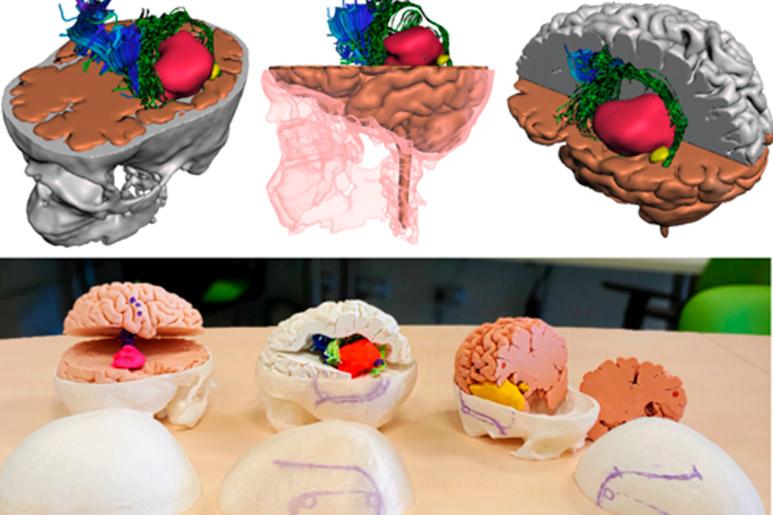 Cerebros-3D